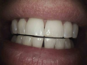 Teeth Whitening | Cosmetic Dentistry in Ringwood, Hampshire